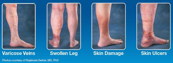 Venous Reflux Disease legs