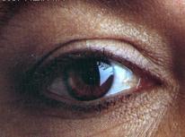 eye drooping
