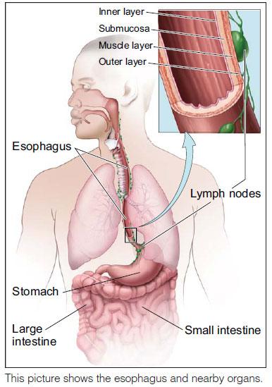 cancer of the esophagu