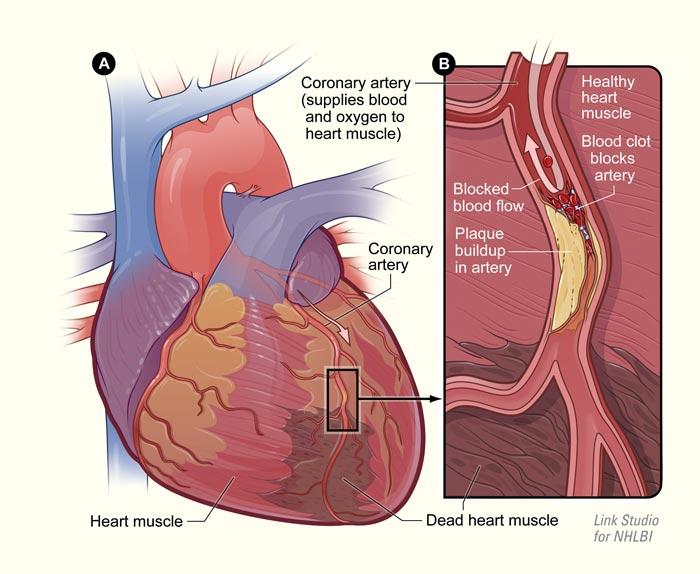 Avoid having a heart attack