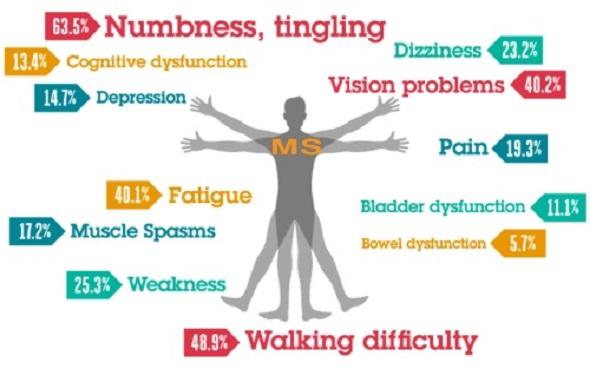 ms disease